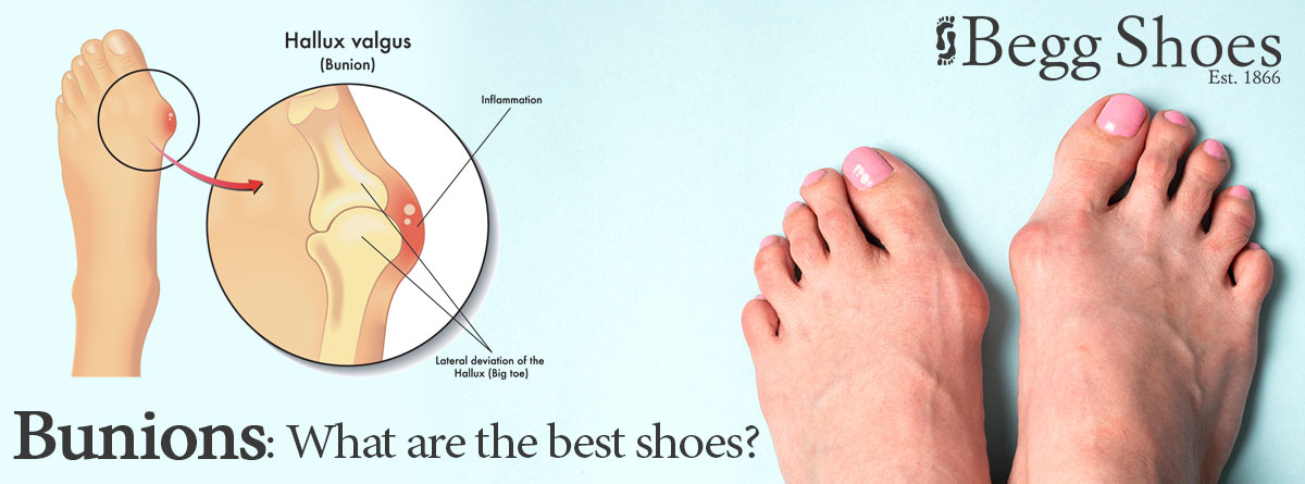 Bunions - Foot Health Problems