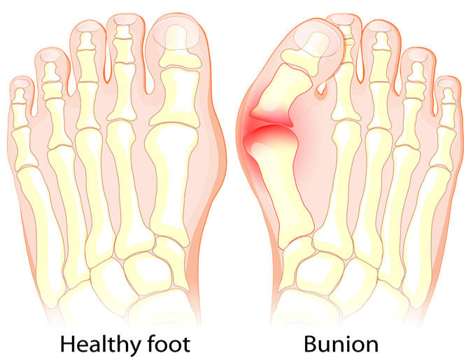 Bunion Advice